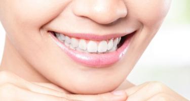 Советы от стоматолога: Белые зубы - не значит здоровые